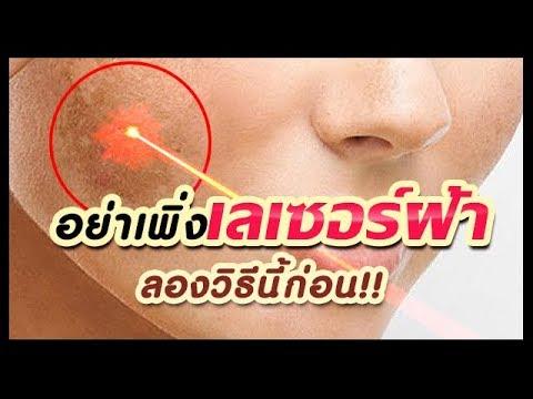 อย่าเพิ่งเลเซอร์ฝ้า ลอกฝ้า!! ลองวิธีนี้ก่อน ผลัดเซลล์ผิว ลดสีเข้มของฝ้าวิธีธรรมชาติ   Melasma Remedy