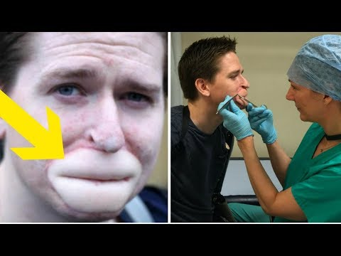 """This Man Was Almost Eaten Alive By """"Flu"""", Now A Tattoo Has Changed His Life Forever"""