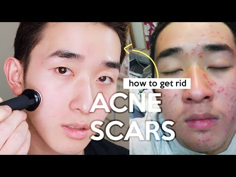 How I Got Rid Of My ACNE Scars! Before After!!