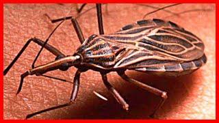 Скачать Síntomas Y Signos De La Enfermedad Mal De Chagas Contagio Y Tratamiento Para Pacientes
