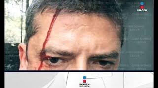 Así se vende droga en CU, narcomenudistas golpean a periodista | Noticias con Ciro