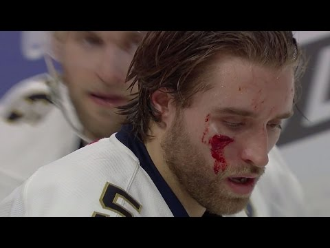 Gotta See It: Ekblad shaken after taking puck to the face