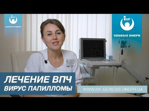 Как лечить ВПЧ - вирус папилломы человека? Выявление и лечение