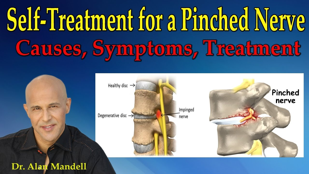 self-treatment for a pinched nerve (causes, symptoms, treatment