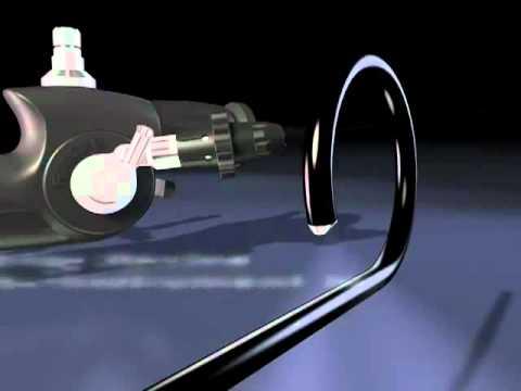 Tán sỏi niệu quản - bể thận bằng Laser