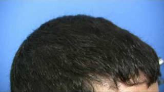 Hair Transplant by Doctor Hasson - 5743 Grafts - 1 Session