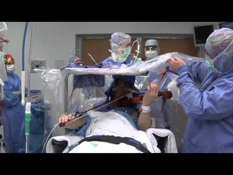 Watch a violinist play through his brain surgery