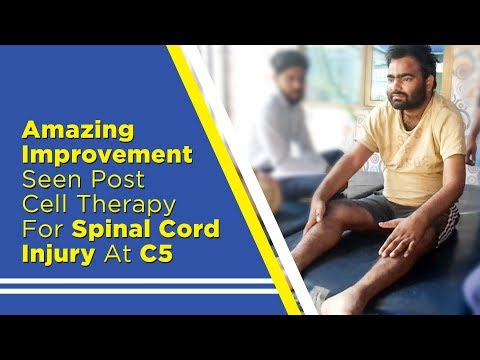 Amazing Improvement Seen Post cell therapy For Spinal Cord Injury At C5