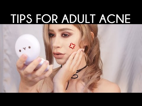 ACNE TREATMENT FOR HORMONAL ACNE & ADULT ACNE