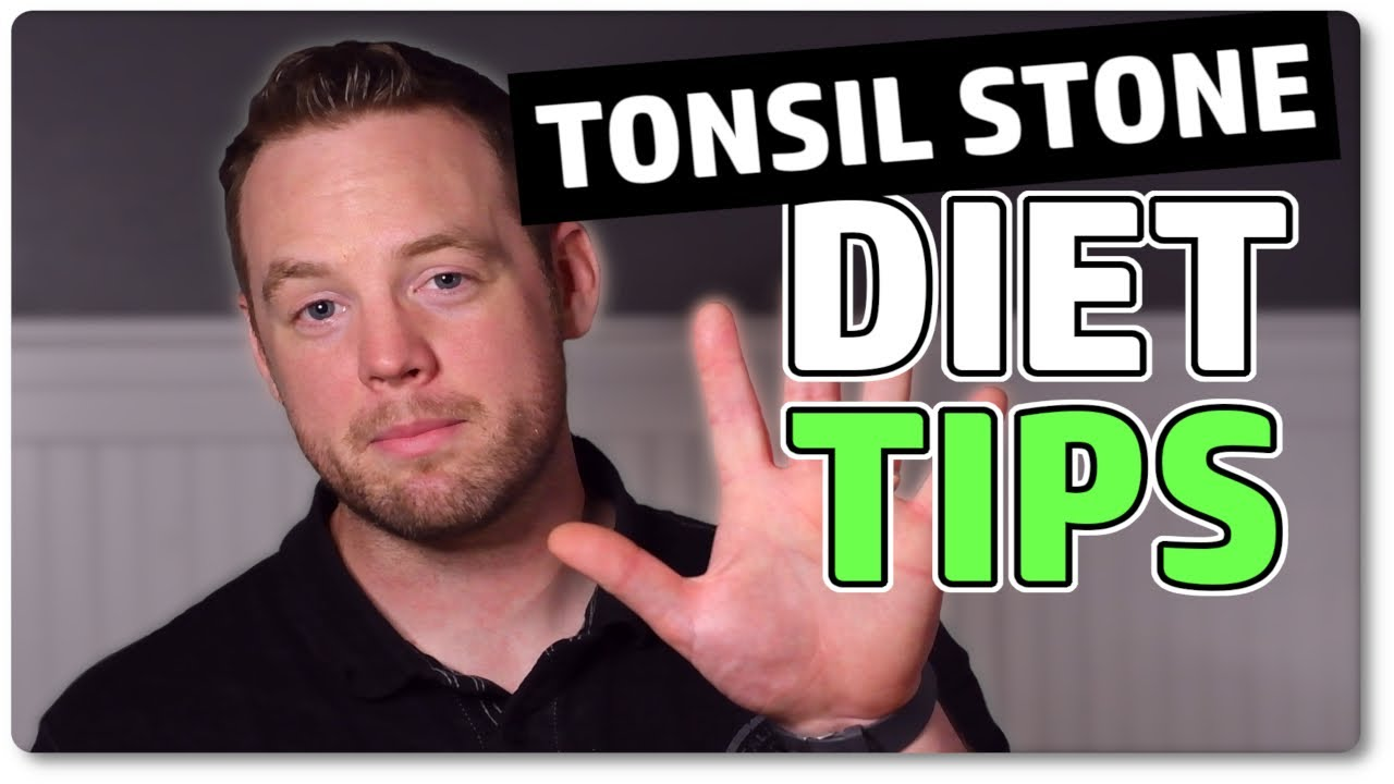 keto diet and tonsil stones