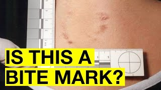 Bite-mark analysis has been shown to be flawed science. So why is it allowed in Canadian courts?