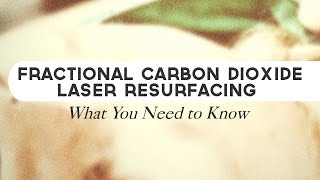 Fractional Carbon Dioxide Laser Resurfacing