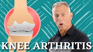 5 Proven Exercises for Knee Osteoarthritis or Knee Pain- Do it Yourself