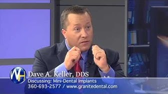 Dave A. Keller, DDS - Mini-Dental Implants, Vancouver, Washington