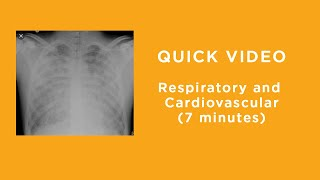 Respiratory and Cardiovascular Challenges with COVID-19 Patients