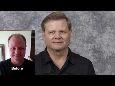 7200 FUE Hair Transplant Case Study   Michael Vories, M D