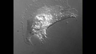 DIC microscopy of a B16F1 mouse melanoma cell