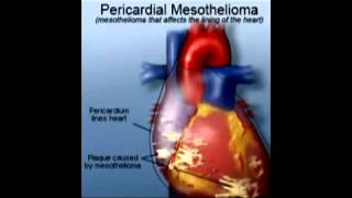 Mesothelioma Law Suits 12