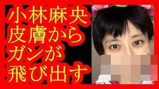 【小林麻央さん死去】皮膚からガンが飛び出していた・・・【だみんちゃんねる】 小林麻央 検索動画 21