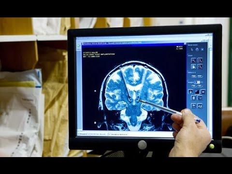 Как лечить опухоль мозга