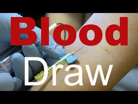 Behind The Scenes: Blood Draw