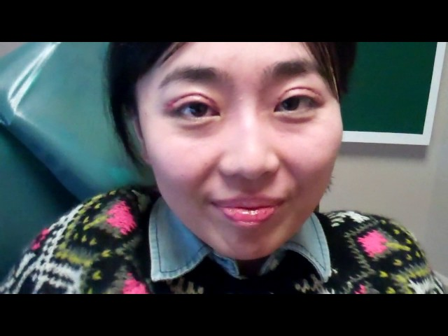 Dallas Asian Double Eyelid Recovery Diary 1 Week
