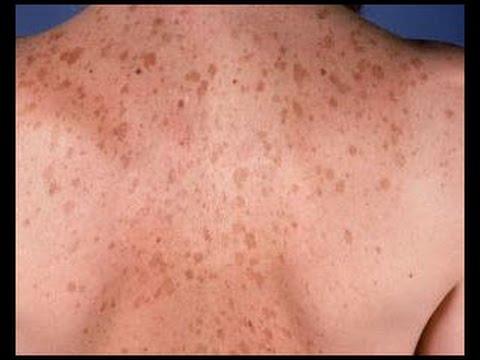Eliminar manchas solares o marrones en la piel y cómo quitar manchas de la cara