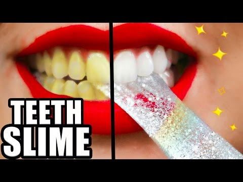 Thumbnail: DIY Teeth Whitening SLIME! Whiter Teeth in 2 Minutes! Natalies Outlet