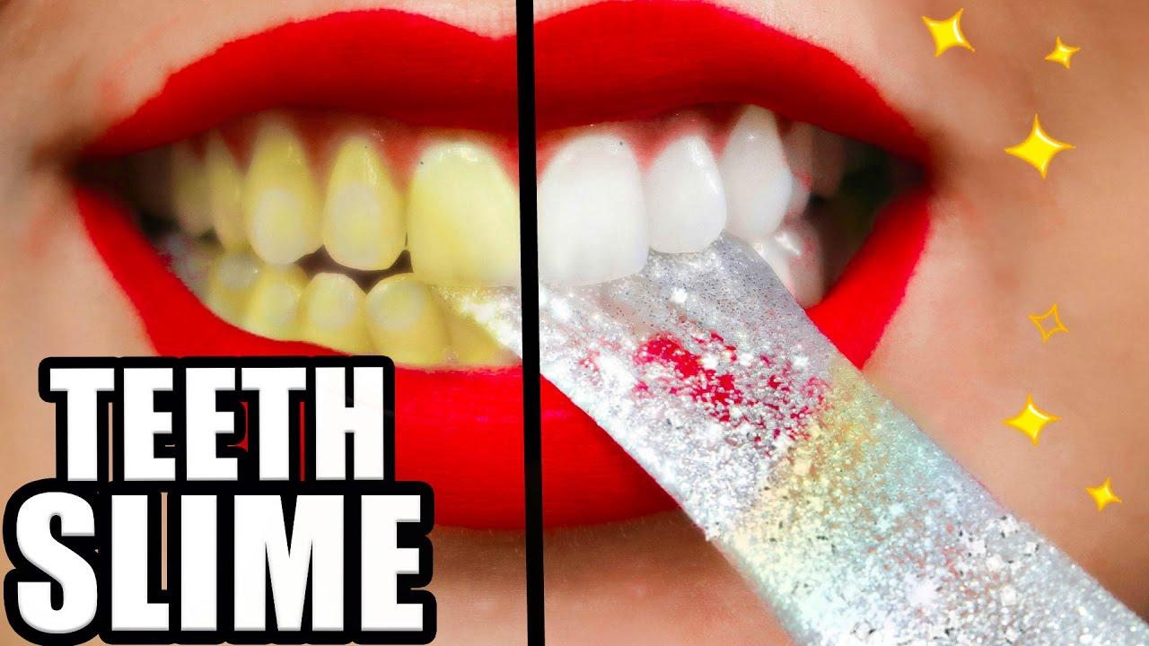 Diy Teeth Whitening Slime Whiter Teeth In 2 Minutes Natalies