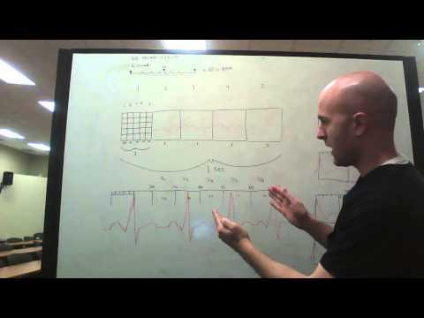 EKG calculating BPM