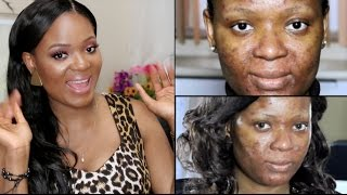 Real Talk | Acne : Depression, Self Pity, Insecurity & Low Self Esteem