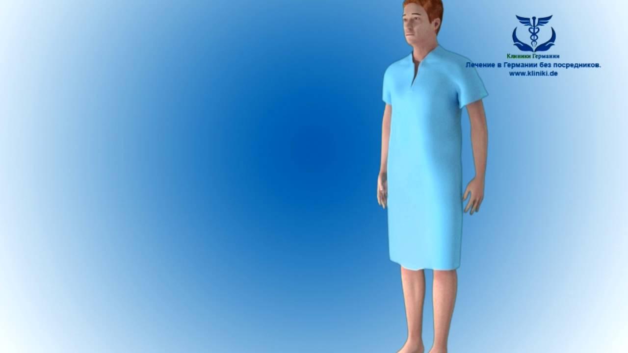 Операции на коленном суставе в германии крем для суставов для беременных женщин