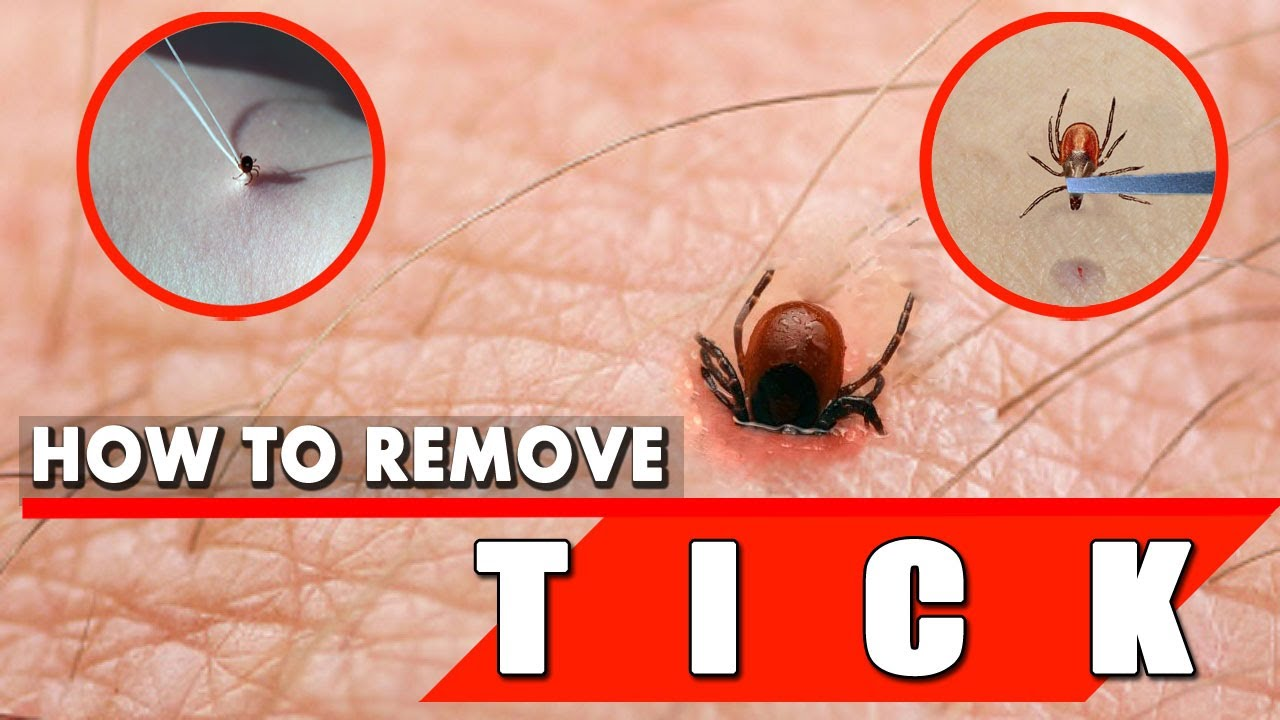 How to Remove a Tick Safely and Quickly  Tick Removal