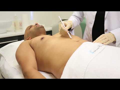 Sulus - Laser Hair Removal for Men at London Laser Clinic