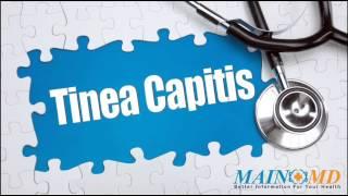 Tinea Capitis ¦ Treatment and Symptoms