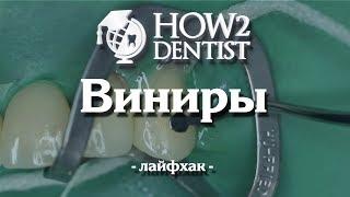 Как фиксировать виниры, лайфхаки / How to Dentist