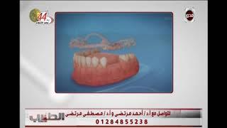 الطبيب - بالفيديو خطوات زراعة الأسنان بدون جراجة .. مع د/أحمد مرتضى أستشارى تقويم وتجميل الاسنان