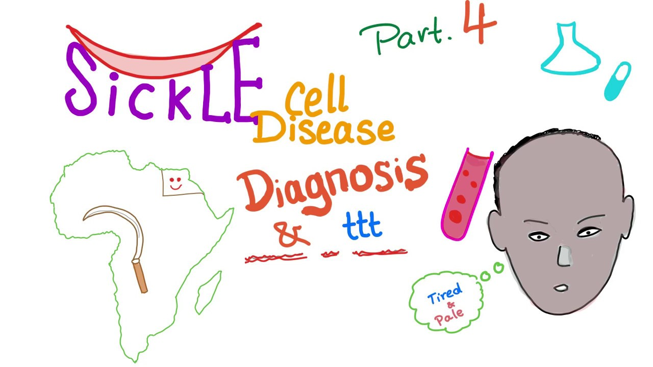 "Sickle Cell Disease ""part 4"": Diagnosis& treatment"