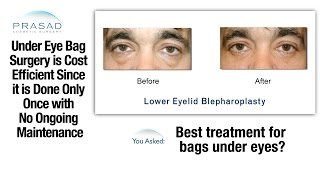Eye Bag Removal Surgery Done Only Once And Leaves No Scars So It Cost
