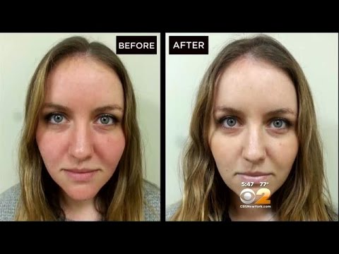 Dr Max Gomez Rosacea Treatment Youtube