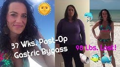 Beach Vaca in Ft. Myers Beach, Florida + 98 Lbs. Lost | 37 Wks. Post-Op | RNY Gastric Bypass | WLS