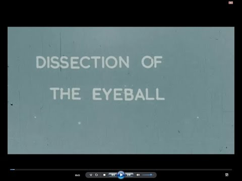 Art Cabaret: Dissection Of The Eyeball