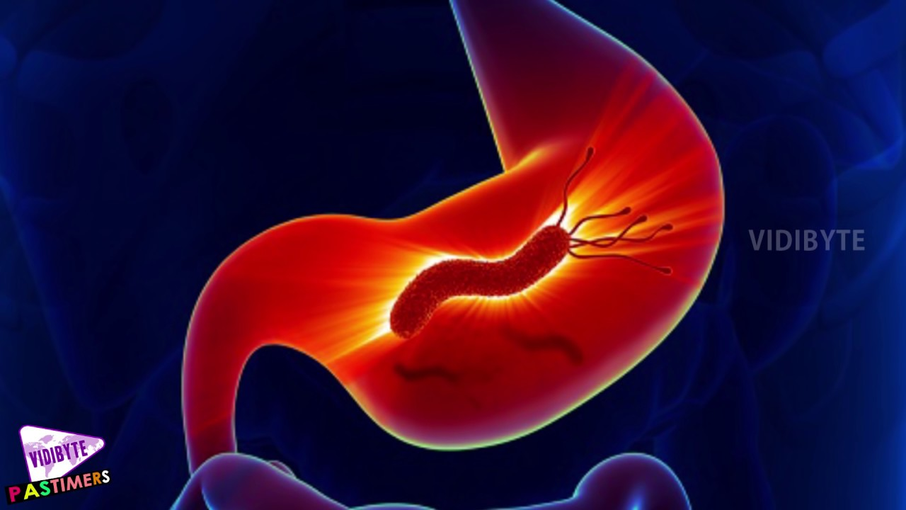 Stomach Cancer Causes And Treatment