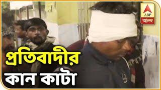 আলিপুরদুয়ারে কান কাটা হল প্রতিবাদীর | Ek Jhalake | ABP Ananda
