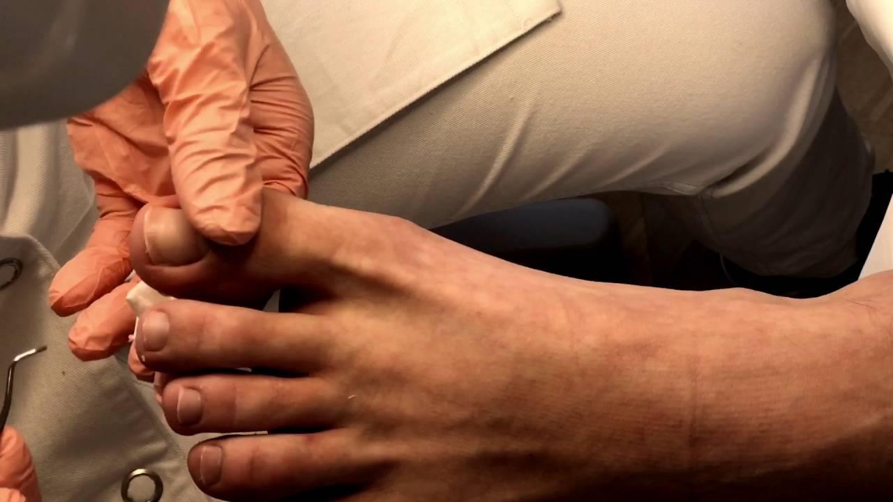 Eingewachsener zehennagel laser op