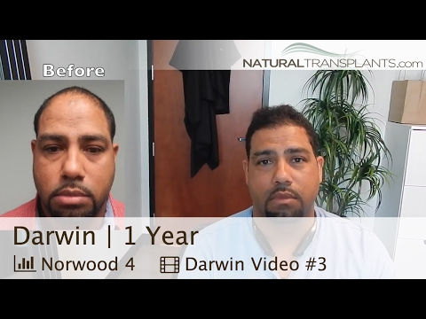 Hair Transplant Results | 1 Year After Hair Transplantation (Darwin)