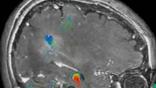 ПЭТ КТ гол мозга(, 2009-09-18T20:48:02.000Z)