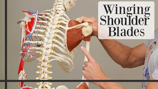 3 Simple Exercises to STOP Winging Shoulder Blades
