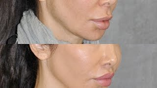 Best Upper Lip Lift Surgeon & Revision Specialist Describes Modified Upper Lip lift in Beverly Hills