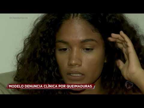 Modelo denuncia clínica de estética por queimaduras